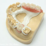 Peek – A New Material For Cad Cam Dentistry